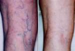 Склера до и после – результат лечения сосудистых звездочек при помощи микросклеротерапии с СО2 газом